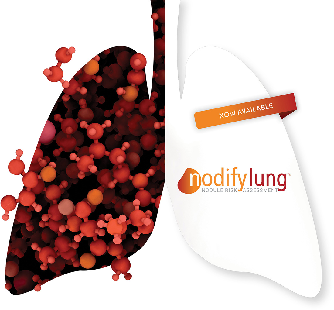 Nodify-Lung-Now-Available